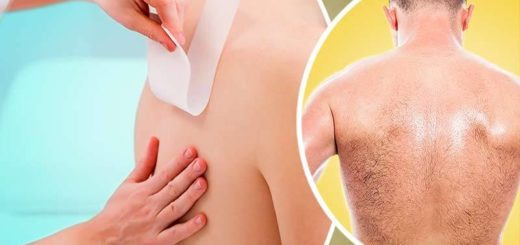 Get Rid of Back Hair